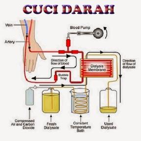 cuci darah1