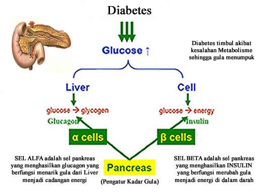 penyebab-diabetes